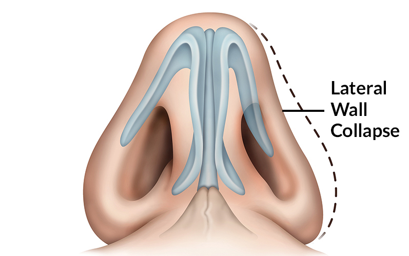 I Can't Breather After a Rhinoplasty due to nasal valve collapse
