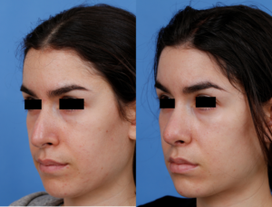 Gregory S Dibelius md before and after rhinoplasty
