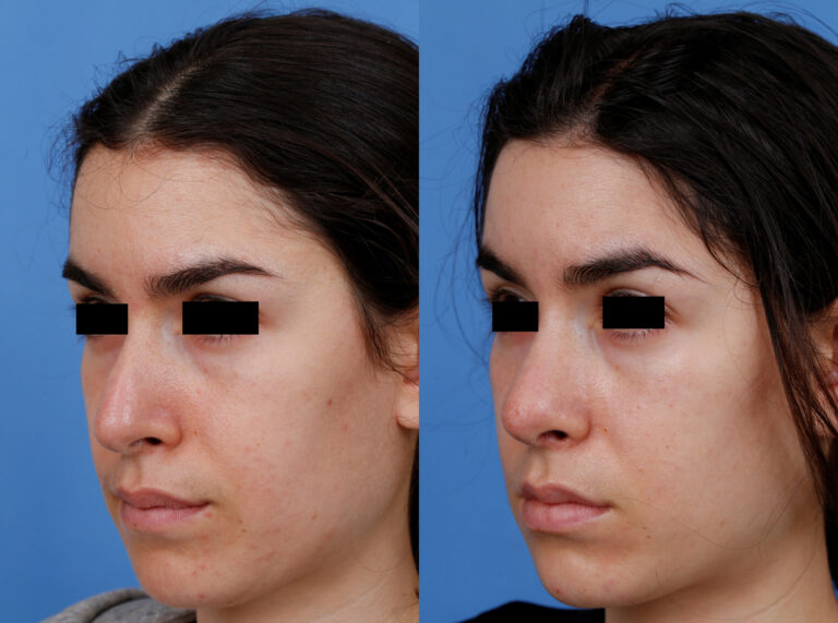 Gregory Dibelius MD Patient Before and After 5
