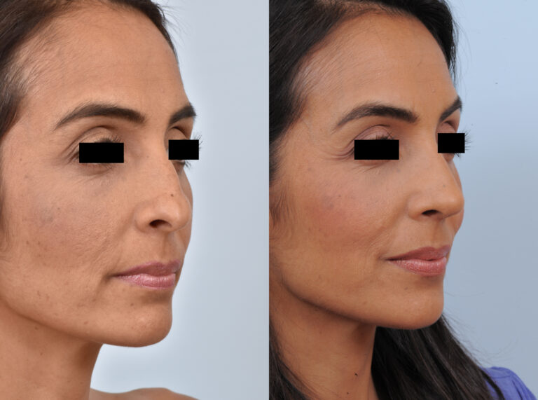 Gregory Dibelius MD Patient Before and After 6