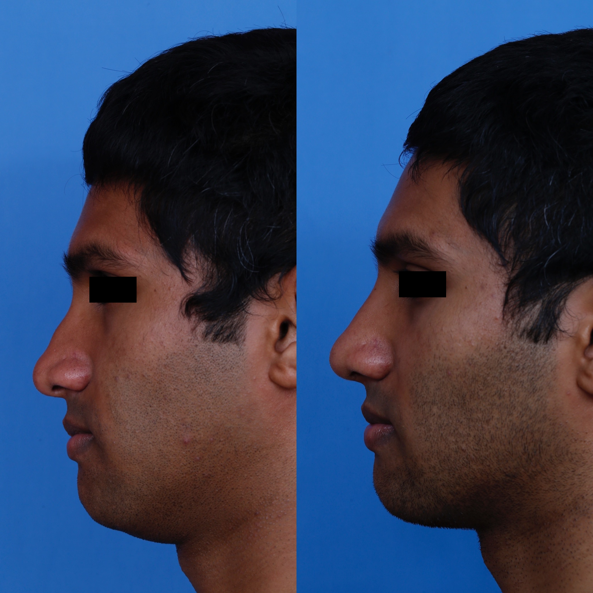 left profile (1)