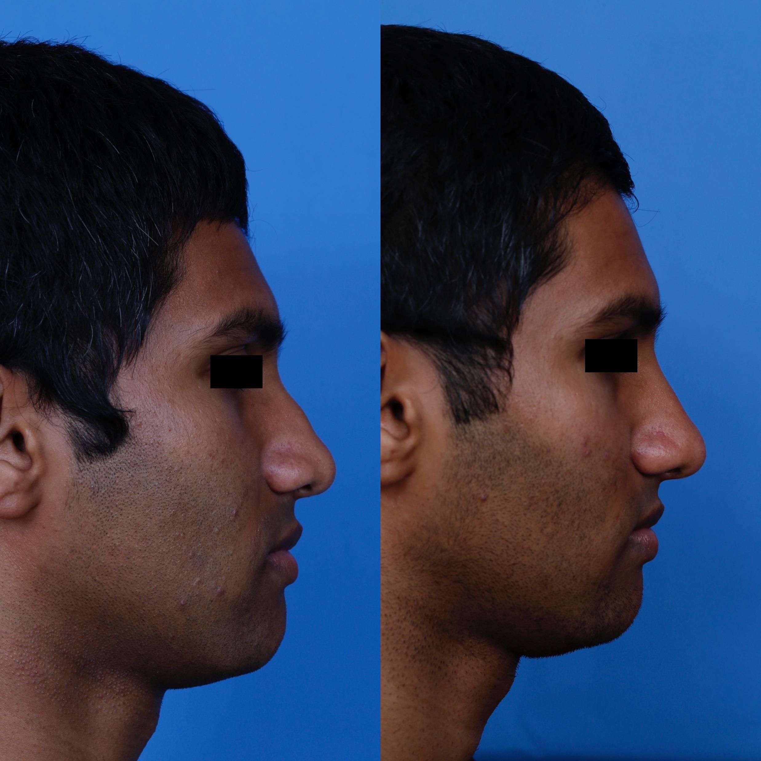 right profile (1)